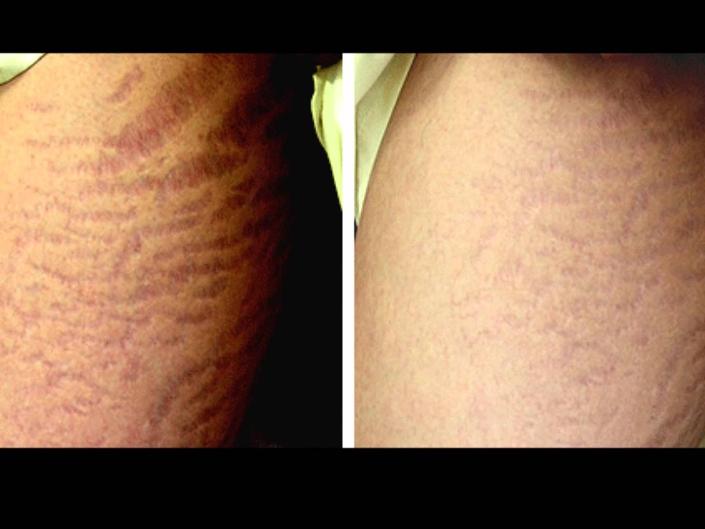 Cellulite gambe sollevate